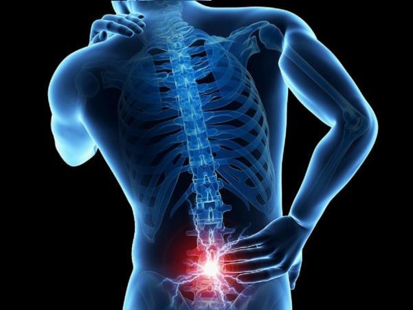 Dolor lumbar: ¿reposo o actividad?